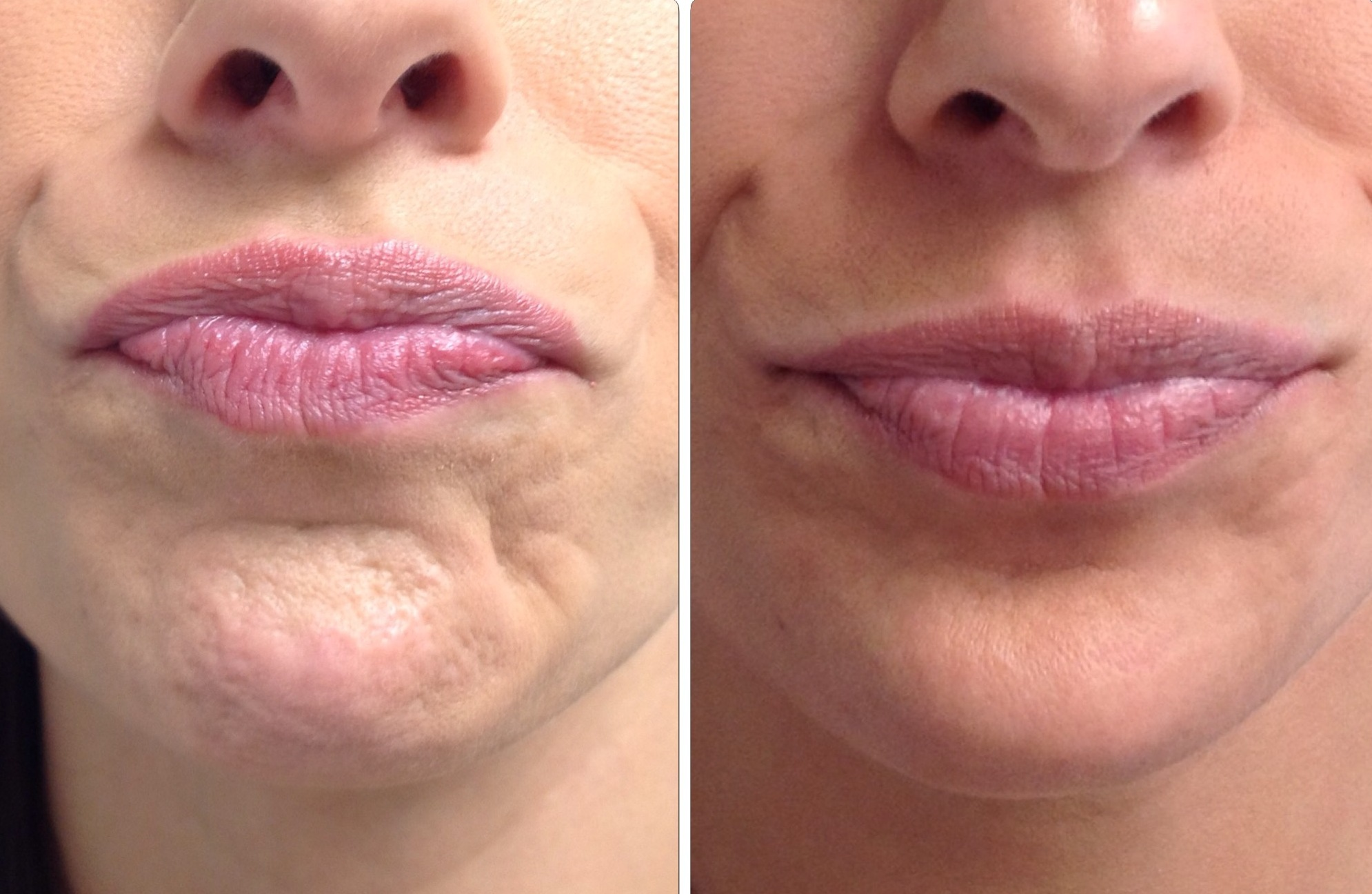 Before/After - Botox chin