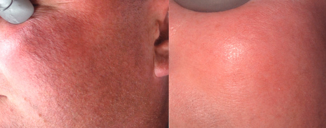 Before/After - Rosacea