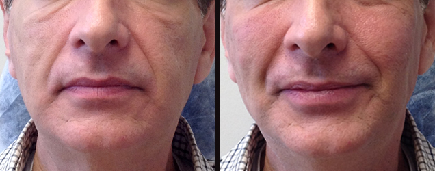 Before/After - Sculptra