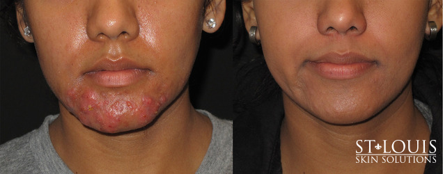 Before/After - Spectra Peel